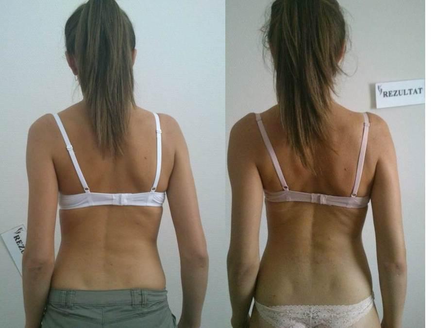 REZULTAT АБОНЕМЕНТ «Оздоровительная программа всего тела» 10 сеансов